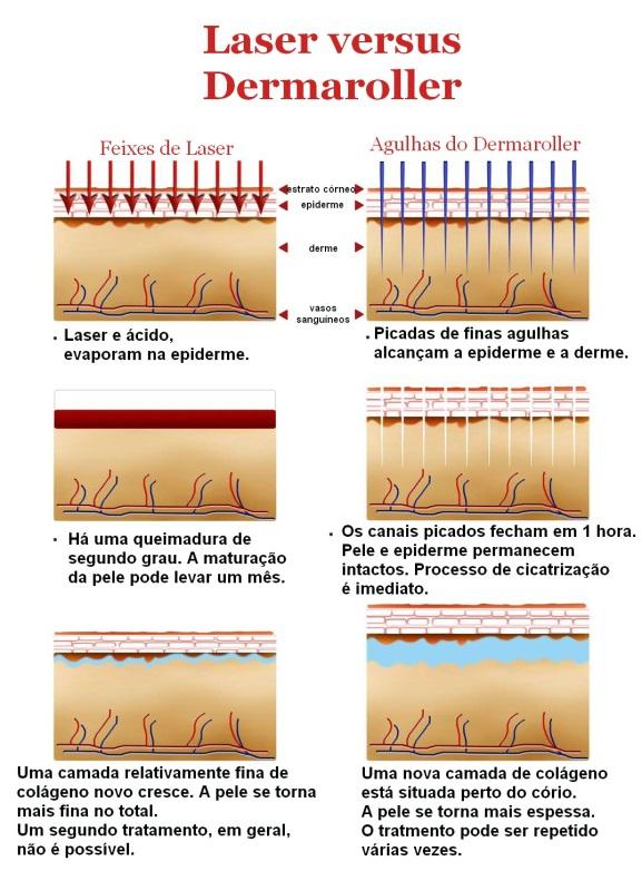 tratamento-face-fisio